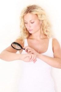 melanoma victim self scan